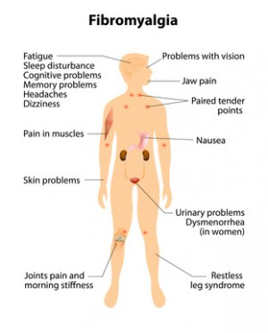 diagram showing signs and symptoms of fibromyalgia
