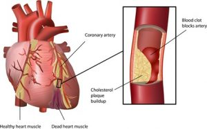 Human Heart Coronary Problem with Cholesterol Plaque Build up