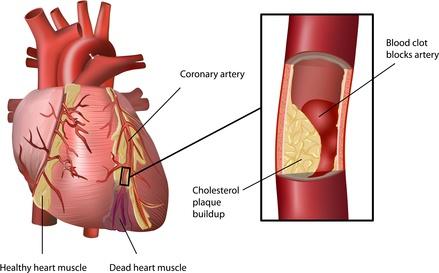 high cholesterol and heart health