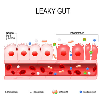 diagram of a leaky gut