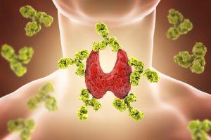 antibodies attacking thyroid self-tissue